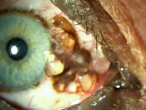 Melanosis conjuntival