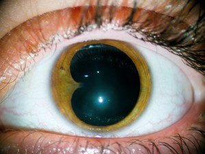 Sinequia irido cristaliniana